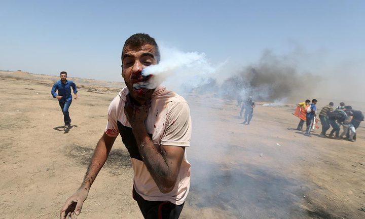 """تحسن الحالة الصحية للجريح """"هيثم أبو سيلة"""" الذي استهدف بقنبلة غاز مباشرة بالوجه شرق غزة"""