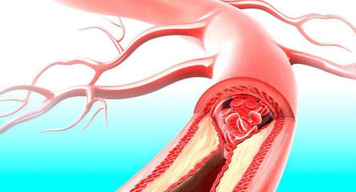 ما هي الطريقة التي ينصح بها العلم لتجنب الإصابة بالنوبة القلبية والسكتة الدماغية ؟