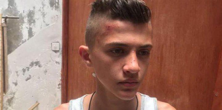 الاحتلال يفرض حبساً منزلياً على الفتى المقدسي مهدي أبو عصب