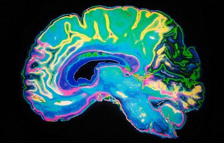 ما هي أفضل طريقة لمعرفة مستوى الذكاء الذي تتمتع به ؟