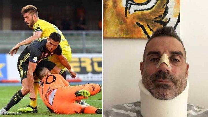 حارس كييفو يشكر الأسطورة رونالدو بعد أن كسر أنفه