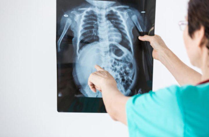 ما هي أنواع وأعراض مرض سرطان العظام؟