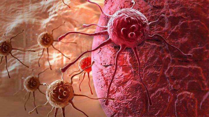 أعراض السرطان التي تظهر قبل خمس سنوات من المرض