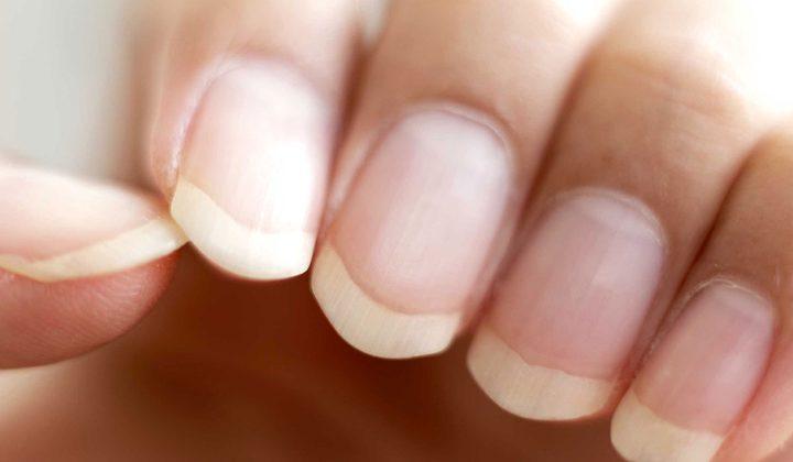 الأظافر تساعد في تشخيص السرطان