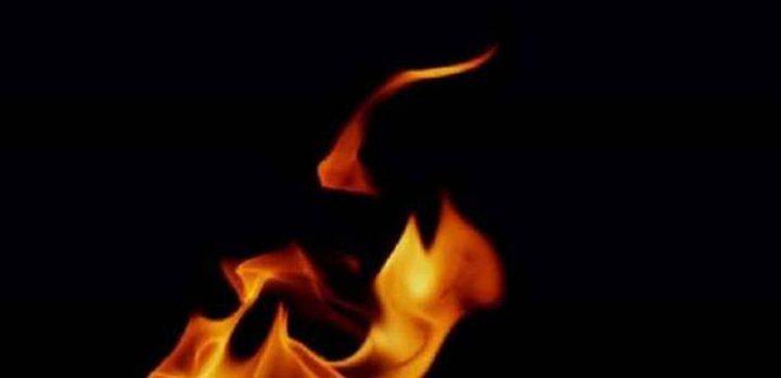 شاب يضرم النار بفتاة والسبب لا يصدق