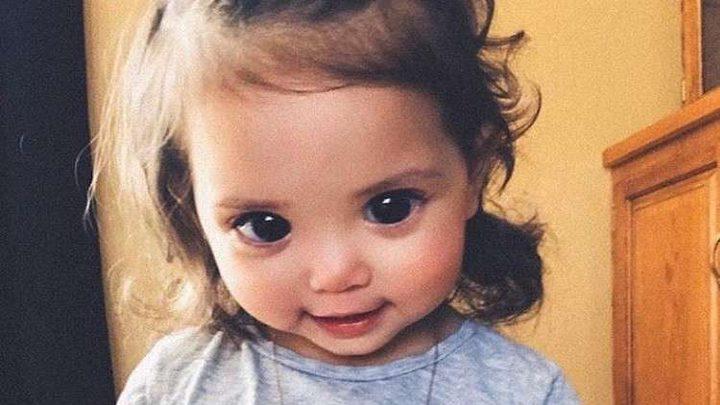مرض نادر يعطي طفلة أمريكية عيونا كبيرة ومؤلمة!