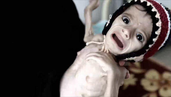 استمرار حرب اليمن يهدد بأسوأ مجاعة منذ 100 عام