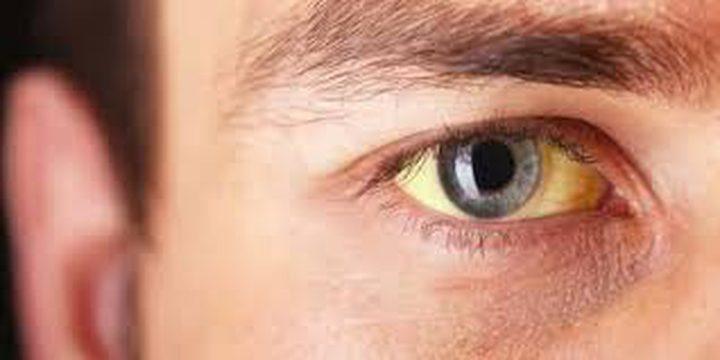 11 سبب لاصفرار العين و8 طرق طبيعية لعلاجها!
