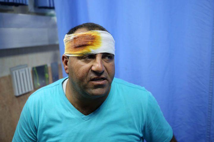 طلبة من مدرسة عوريف ومواطنون يتلقون العلاج في مستشفى رفيديا بنابلس، بعد اصابة خمسة منهم خلال هجوم للمستوطنين على المدرسة