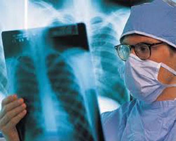 التصوير الشعاعي يحد من الوفاة بسرطان الثدي