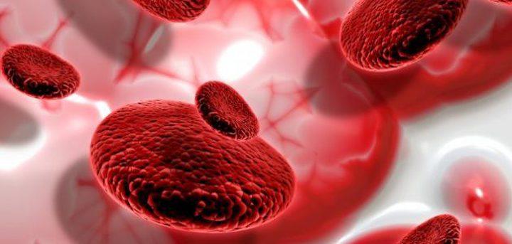 تطبيق يكشف فقر الدم بدون اجراء الفحوصات!