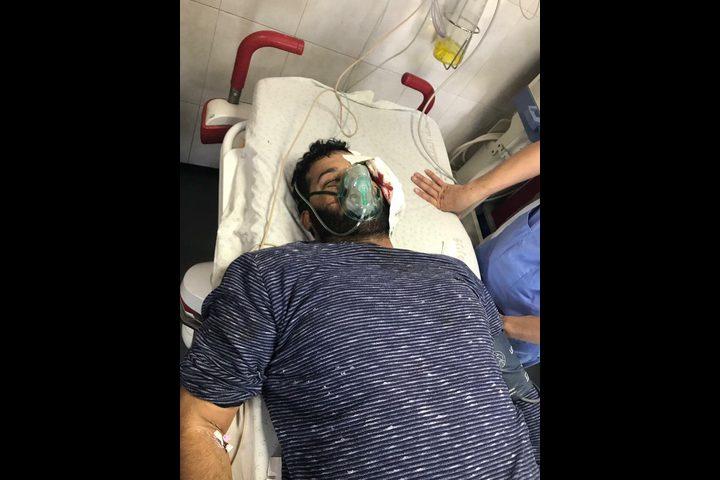 إصابة 3 صحفيين بقنابل الغاز والرصاص المطاطي في الضفة والقطاع