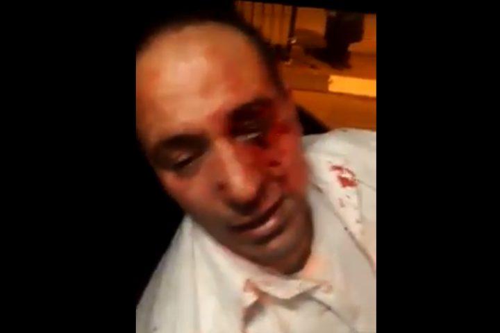 إصابة مقدسي جراء الاعتداء عليه من قطعان المستوطنين