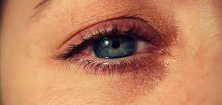 أسباب زغللة العين وطرق الوقاية منها
