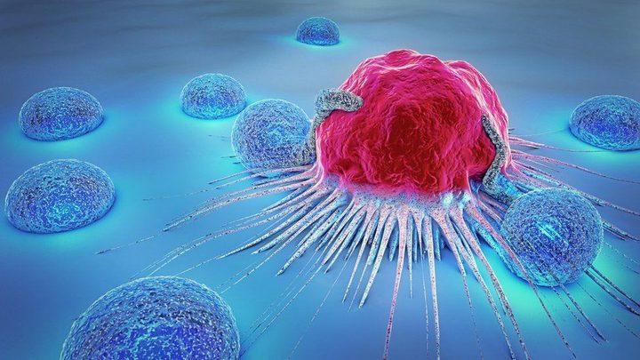 """""""الورم الافتراضي"""": أسلوب جديد لاستكشاف السرطان"""