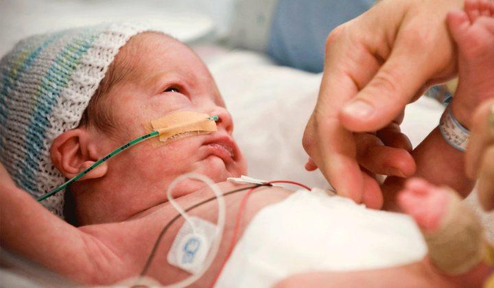 ولادة طفلة بكلية واحدة في روسيا