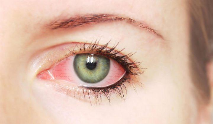 ظهور بقع دم في العين: الأسباب، طرق العلاج!