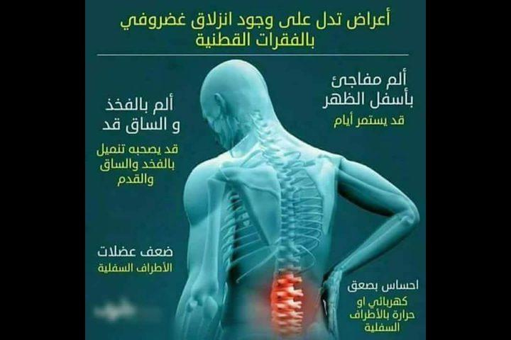 أعراض تدل على وجود انزلاق غضروفي بالفقرات القطنية