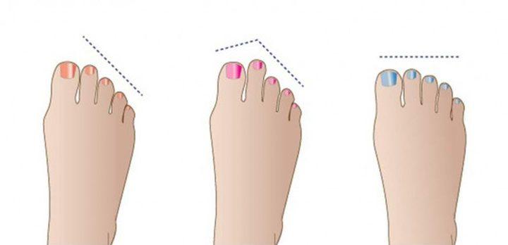 هل تعرفين أن شكل أصابع القدمين قد تقول الكثير عن الشخص؟