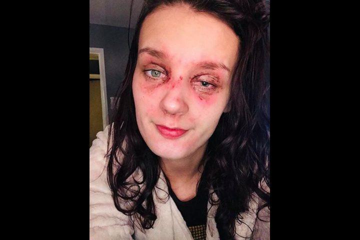 أُصيبت بالعمى.. والسبب بيضة مسلوقة!