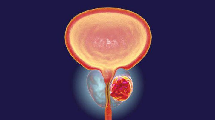 اكتشاف جين مسؤول عن انتشار سرطان البروستاتا