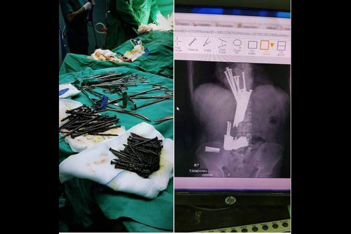 مدير مستشفى جنين يوضح تفاصيل العثور على مسامير داخل بطن مريض