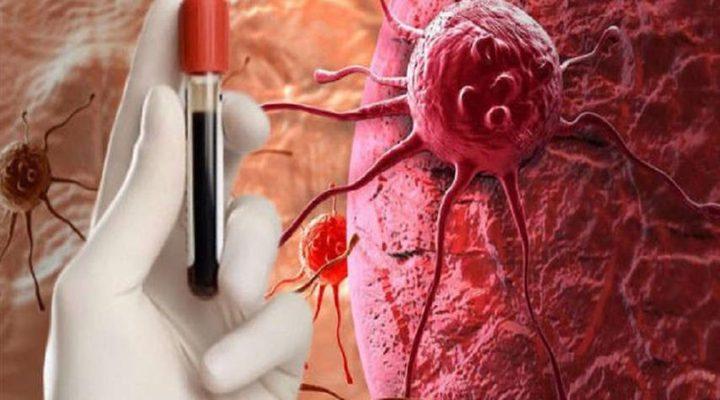 اكتشاف سبب ظهور سرطان الدم