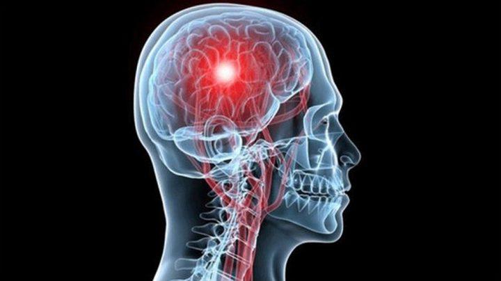 أعراض الجلطة الدماغية تهدد الرجال تحت الـ 75 عامًا