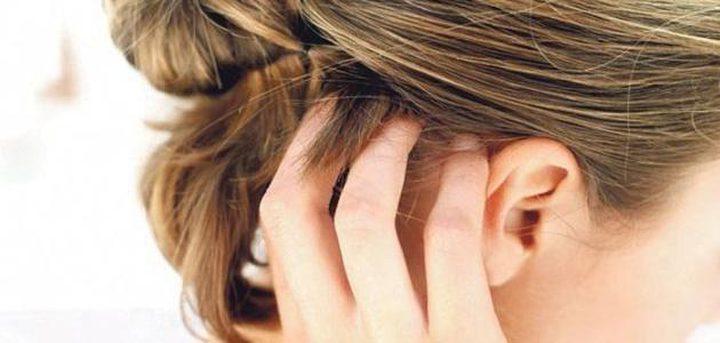 علاجات منزلية للتخلص من حكة الرأس