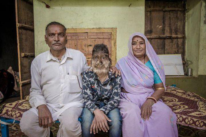 الطفل المستذئب في الهند!