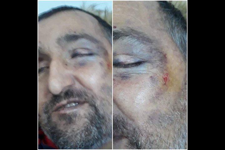 الاحتلال يعتدي بشكل همجي على مواطن كفيف