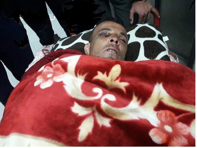 الاحتلال يفرج عن الصياد المصاب مروان الصعيدي من خانيونس
