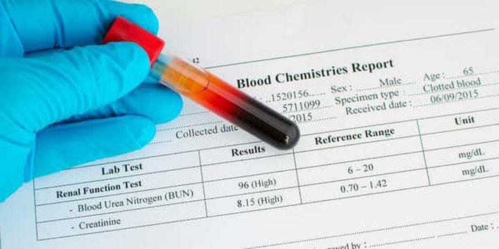 6 نصائح لخفض نسبة الكرياتينين في الدم