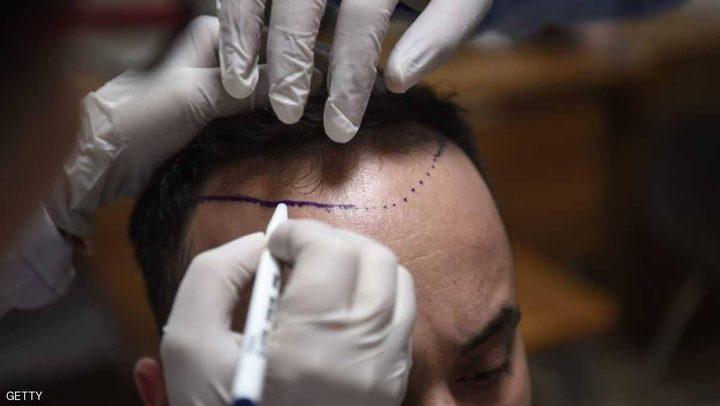 """تقنية طبية تسمح بتخزين شعرك لـ""""أيام الصلع"""""""