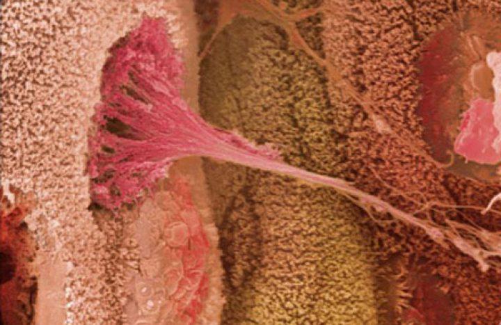 دراسة: التمارين الرياضية تمنع انتشار سرطان الأمعاء في الجسم