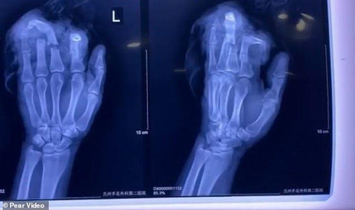 صينى يقطع 4 أصابع من يده بعد خناقة مع زوجته