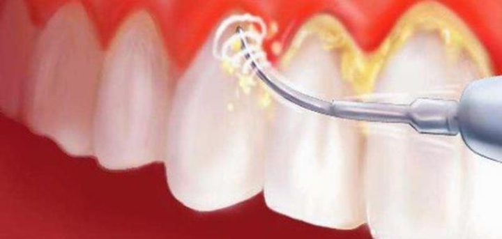 ما هي أضرار تكون طبقة من الجير على الأسنان ؟