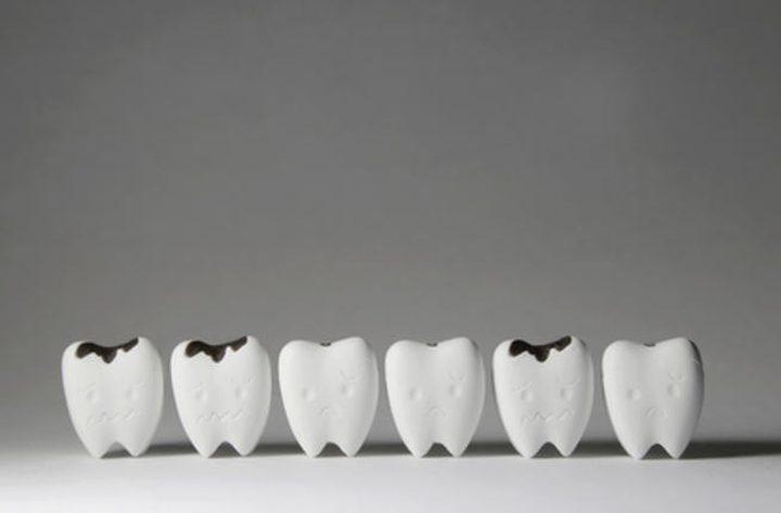 أطعمة غير سكرية تسبب تسوُّس الأسنان