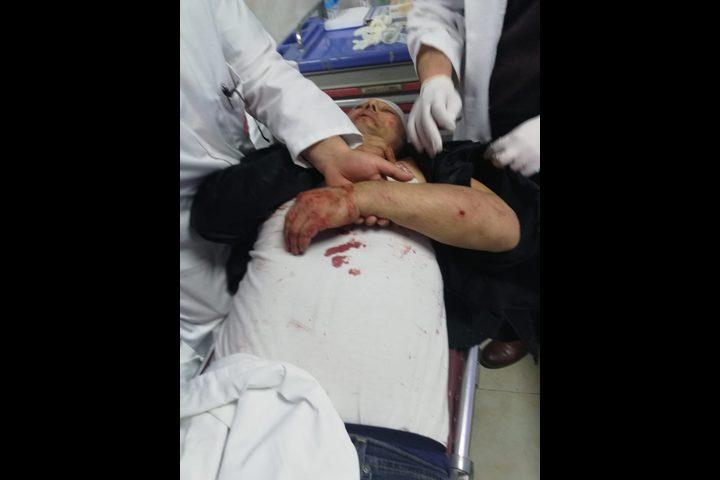 ردود فعل غاضبة لاعتداء الأجهزة الأمنية في غزة على ابو سيف