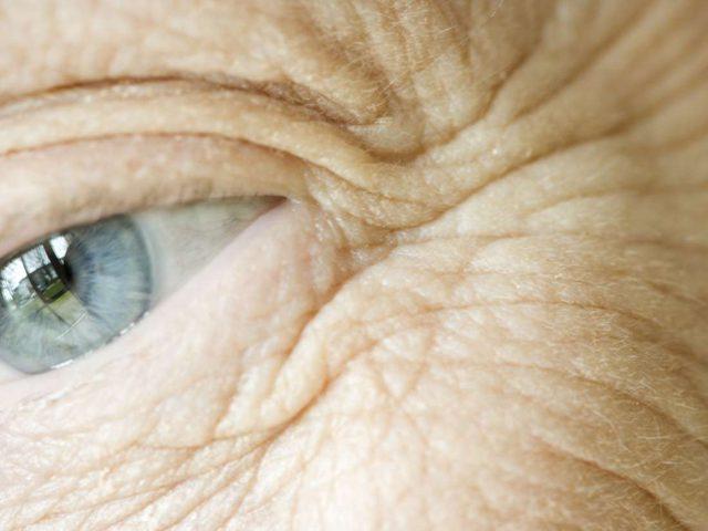 دراسة: تجاعيد البشرة قد تقلل من خطر الاصابة بعدة أمراض مزمنة