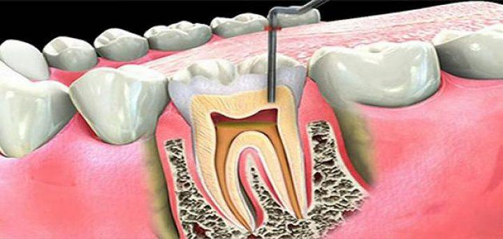 عصب الأسنان ..أعراضه وعلاجه