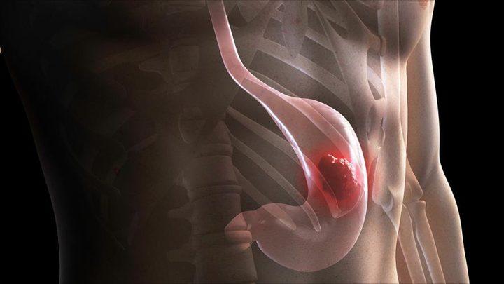 سرطان المعدة واعراضه