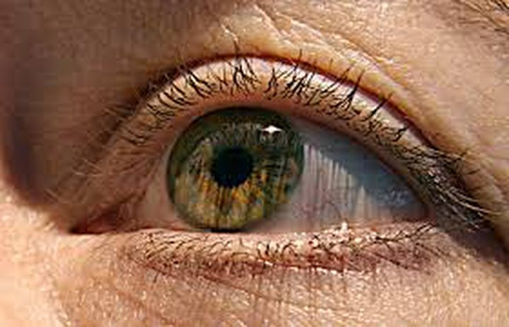 مستويات البروتين في العين تحدد مدى الإصابة بالزهايمر