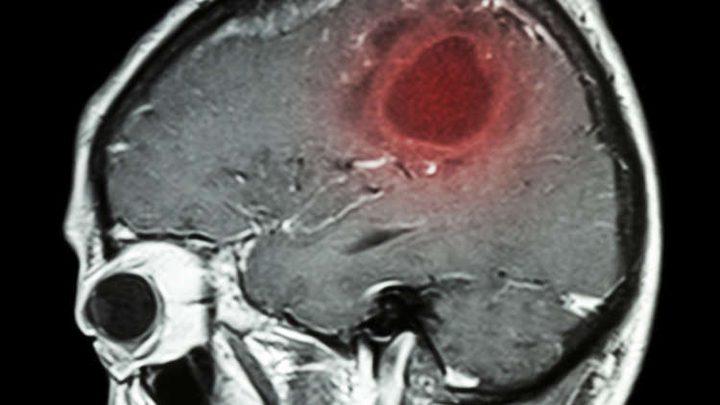 مصابون بسرطان الدماغ يكشفون أعراضا لم يعيروها سابقا أي أهمية