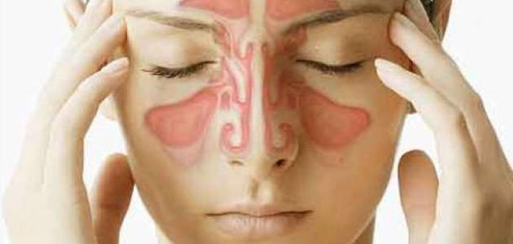 دراسة: مرضى حساسية الجيوب الانفية اقل عرضة للاصابة بالسرطان