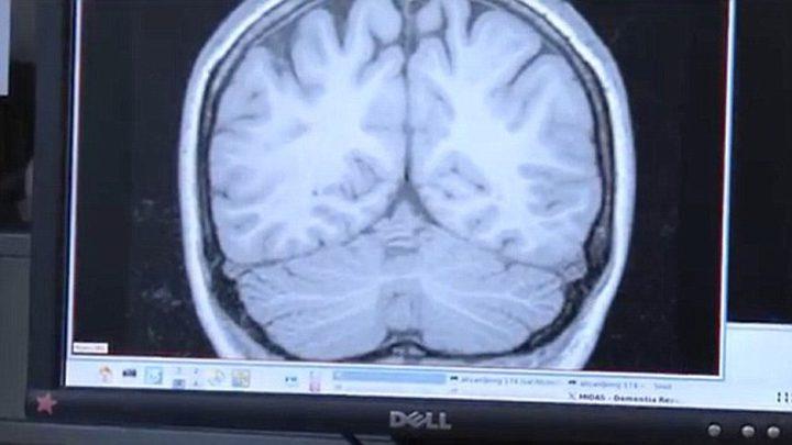 باحثون : التدخين لا يسبب الزهايمر