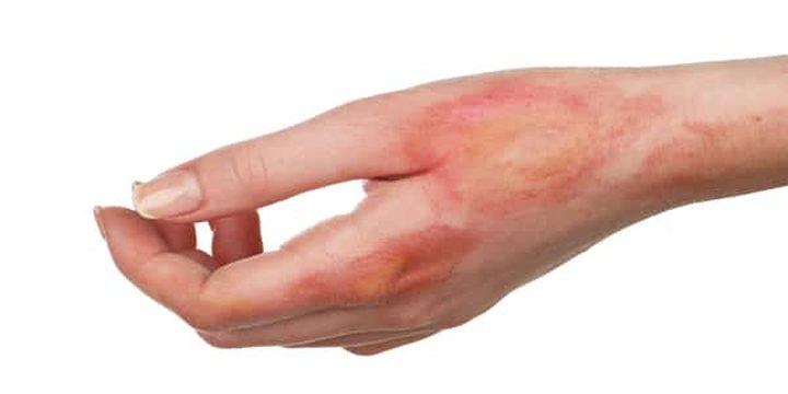 طرق علاج الطفح الجلدي في المنزل