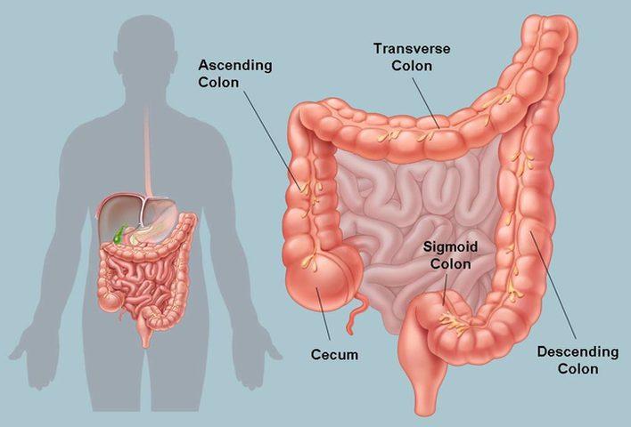 أسباب التهاب القولون أهمها الوراثة والأطعمة الدسمة