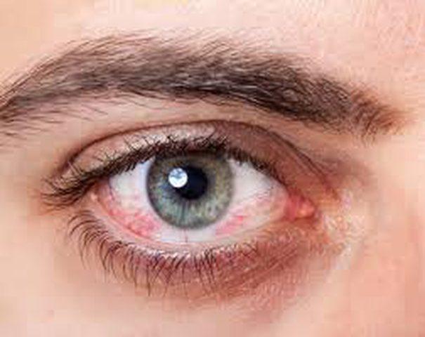 مهندس المستفيد هيأ دم داخل العين Comertinsaat Com