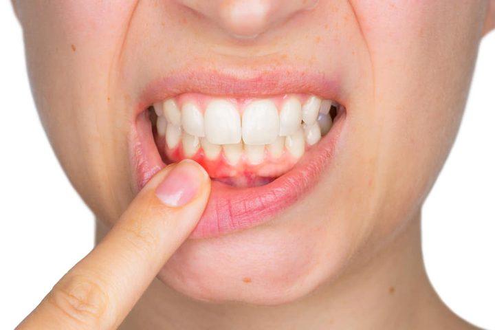 أبرز طرق علاج التهاب اللثة